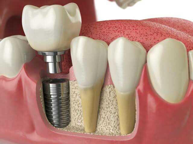 dental implant cost in Bluff City